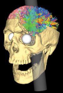 Simulated_Connectivity_Damage_of_Phineas_Gage_4_vanHorn_PathwaysDamaged_left